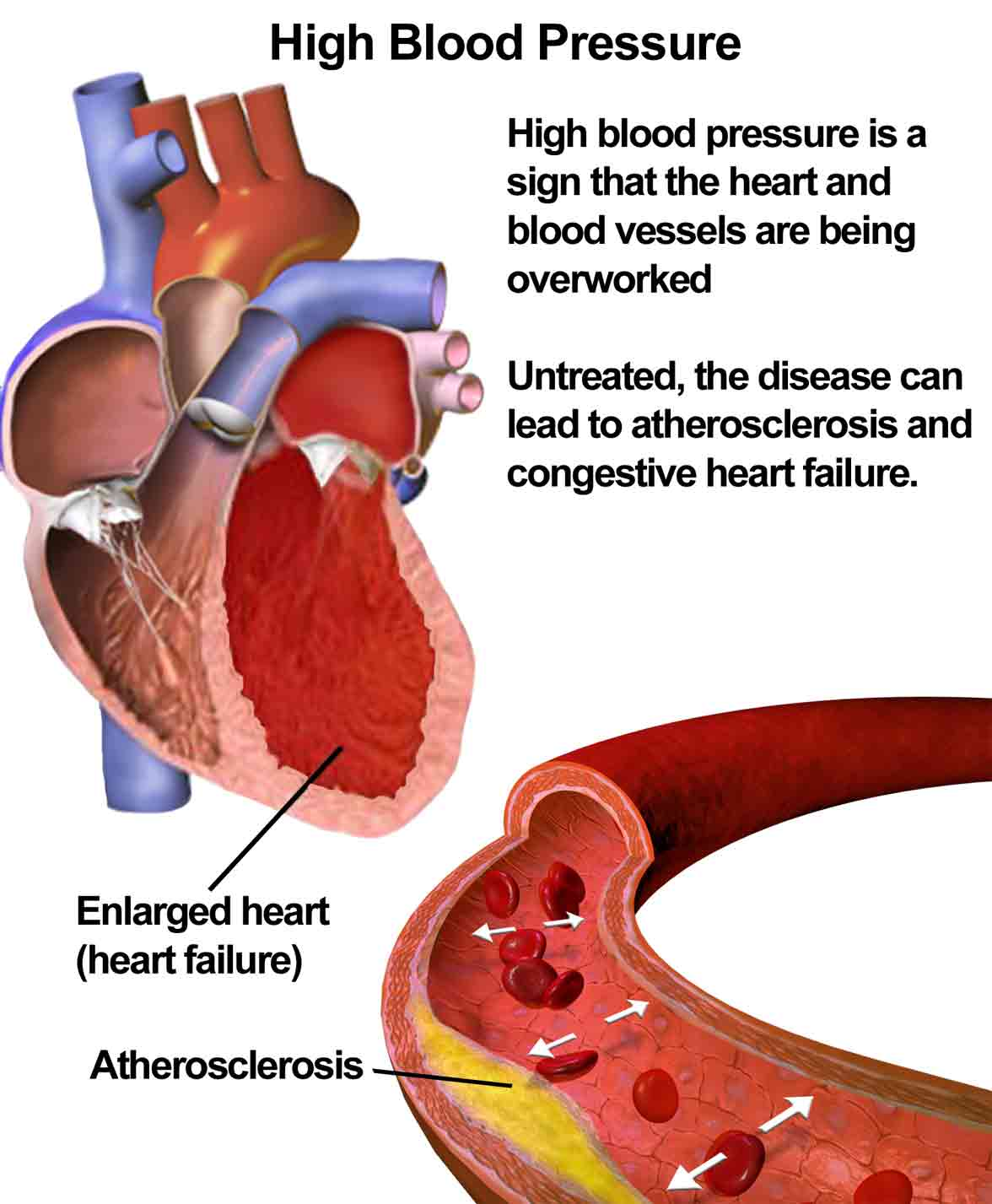 Graphic showing of what causes hypertension