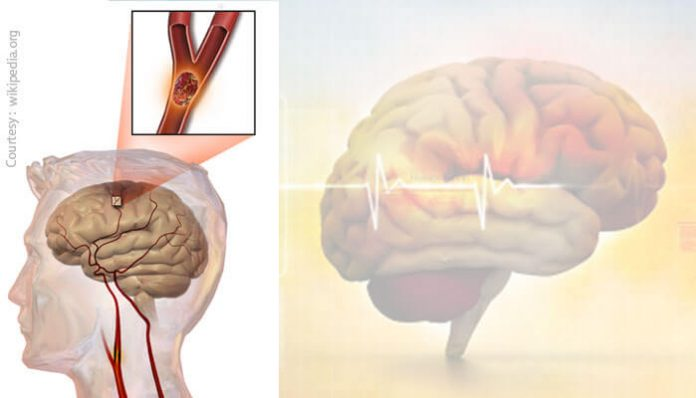 Stroke: A major cause of disability and death
